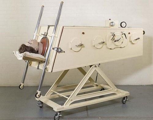 Железные легкие (Лондон, Англия 1950-1955 годы). Жертв полиомиелита в 1940-х и 1950-х годах, у которых наступал паралич дыхательных мышц, помещали в специальные аппараты, которые поддерживали дыхательный ритм в течение нескольких недель, месяцев или лет. Некоторые пациенты находились в 'железной легких' на протяжении всей оставшейся жизни, которая проходила под постоянный 'кликающе-шуршащий' аккомпанемент аппарата. Смерти таким образом можно было избежать, но вы оказывались в настоящем 'гробу', приспосабливая свое дыхание, речь и приемы пищи к ритму машины.